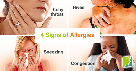 allergic reaction signs