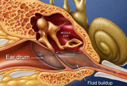 Inner Ear Infection and Vertigo